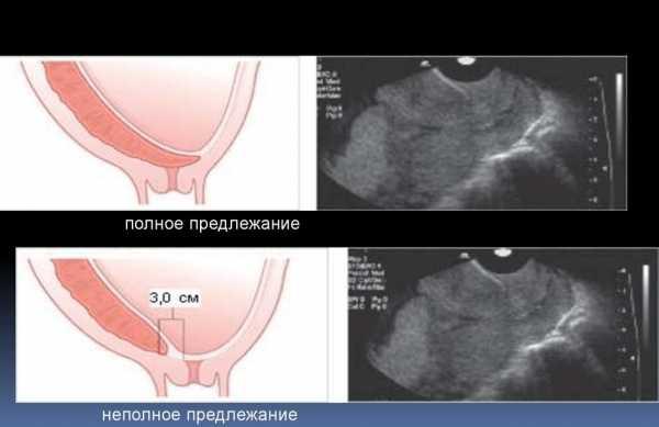 Предлежание плаценты на УЗИ