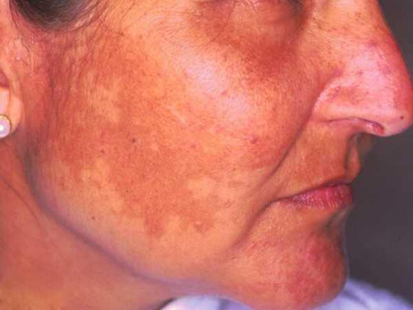 Проявление фотосенсибилизации на лице