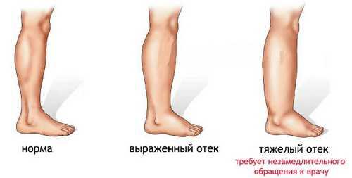 Разные степени отёков на ногах: рисунок