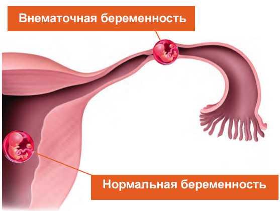 На схеме показано номальное течение беременности и внематочная беременность