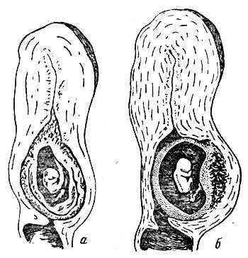 Шеечная беременность и аборт