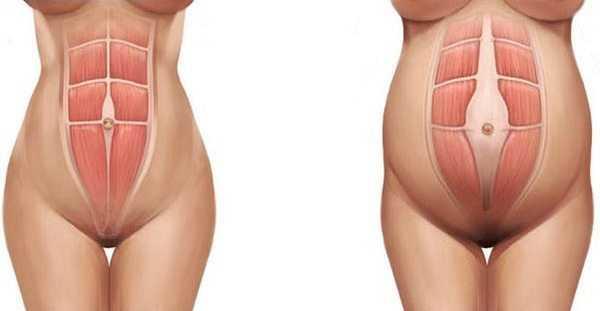 Схема растяжения брюшных мышц