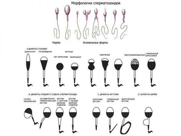 Сперматозоиды под микроскопом
