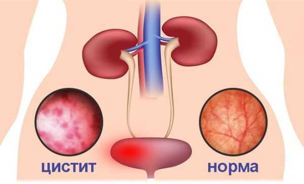 Сравнение здоровой стенки мочевого пузыря и воспалённой