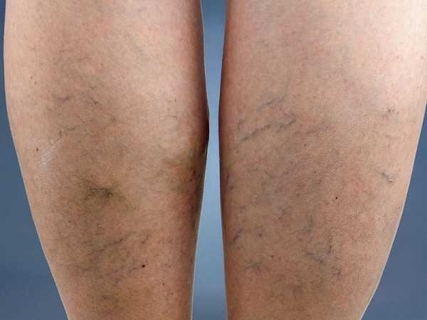 женские ноги с варикозом