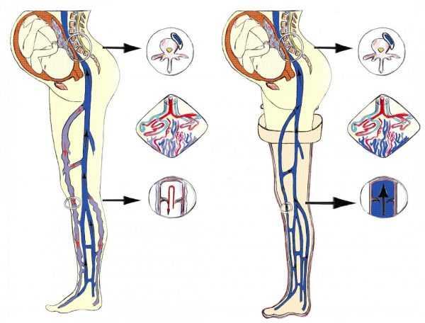 Кровеносная система у беременной женщины