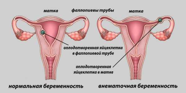 Схема — нормальная и внематочная беременность
