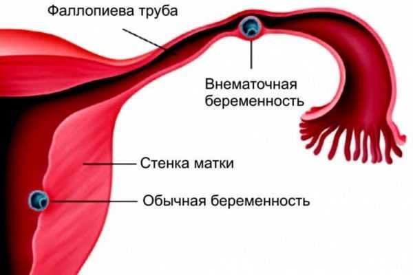 внематочная беременность на схеме