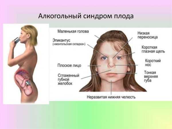 Внешние признаки фатального алкогольного синдрома