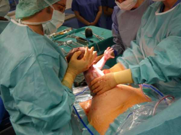 Врачи достают малыша во время операции кесарева сечения
