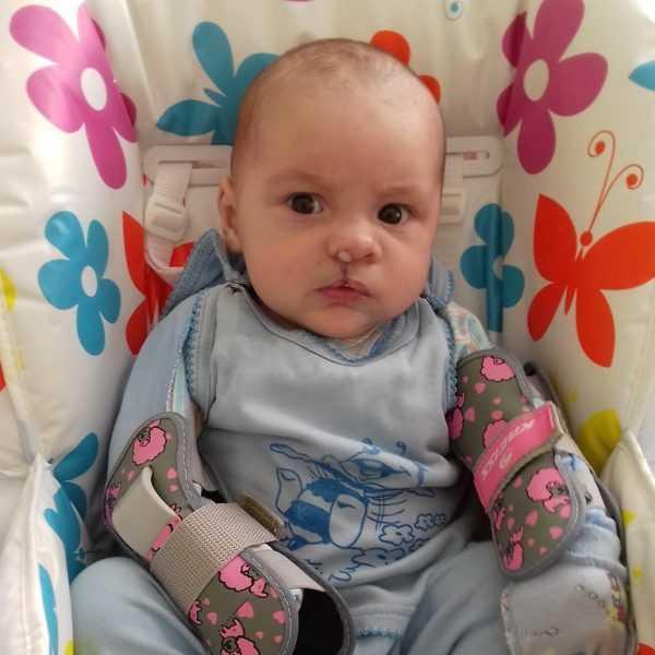 заячья губа у ребёнка после операции