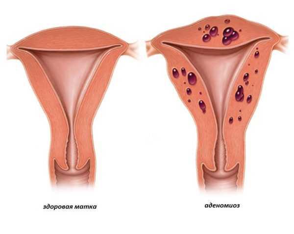 Здоровая матка и матка, поражённая аденомиозом